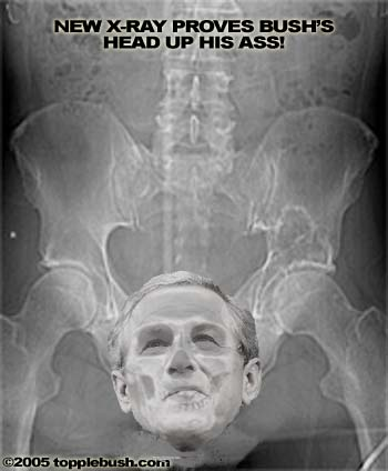 Bush's head up his ass x-ray